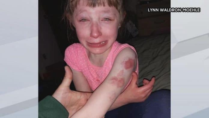 Lillian Waldron is pictured with wounds and bruises after another girl was biting her while sitting on the school bus. (Photo courtesy of WBAY.com.)